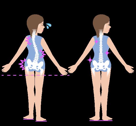 Sphenologie behandelt Schiefstellung der Wirbelsäule - skoliotische Verkrümmung